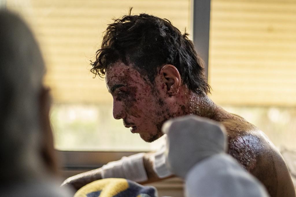 UN istražuje turske ratne zločine u Siriji